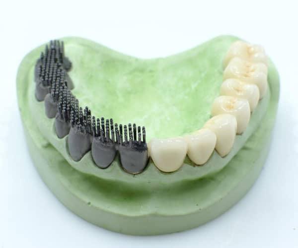 Implantes dentales en impresión 3D de metal