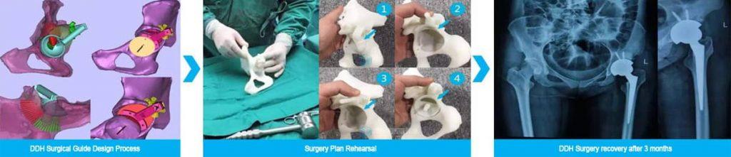 Protesis de cadera en 3D