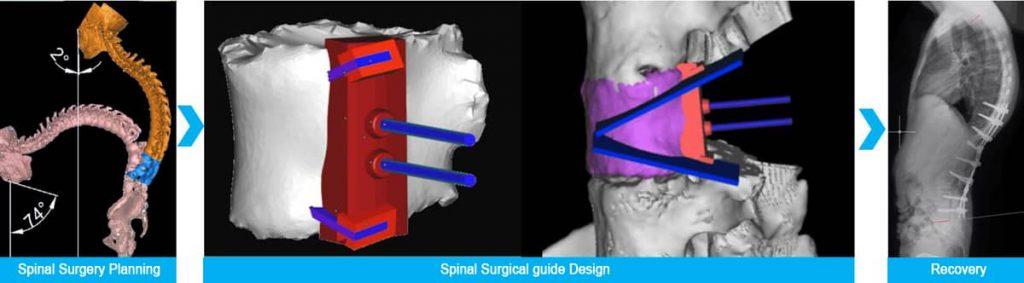 Protesis de columna en 3D