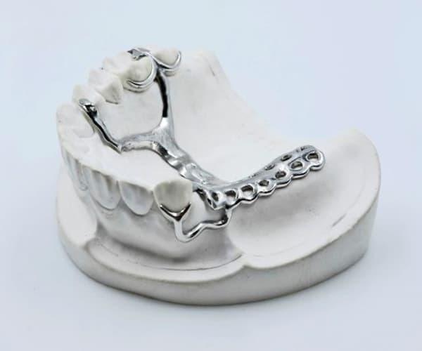 Puente dental en SLM
