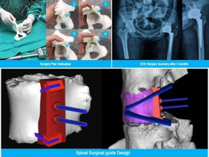 Prótesis médicas con tecnología SLS